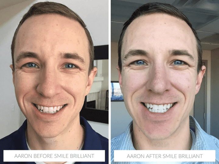Aaron before & after with Smile Brilliant teeth whitening @smilebrilliant #smilefearlessly