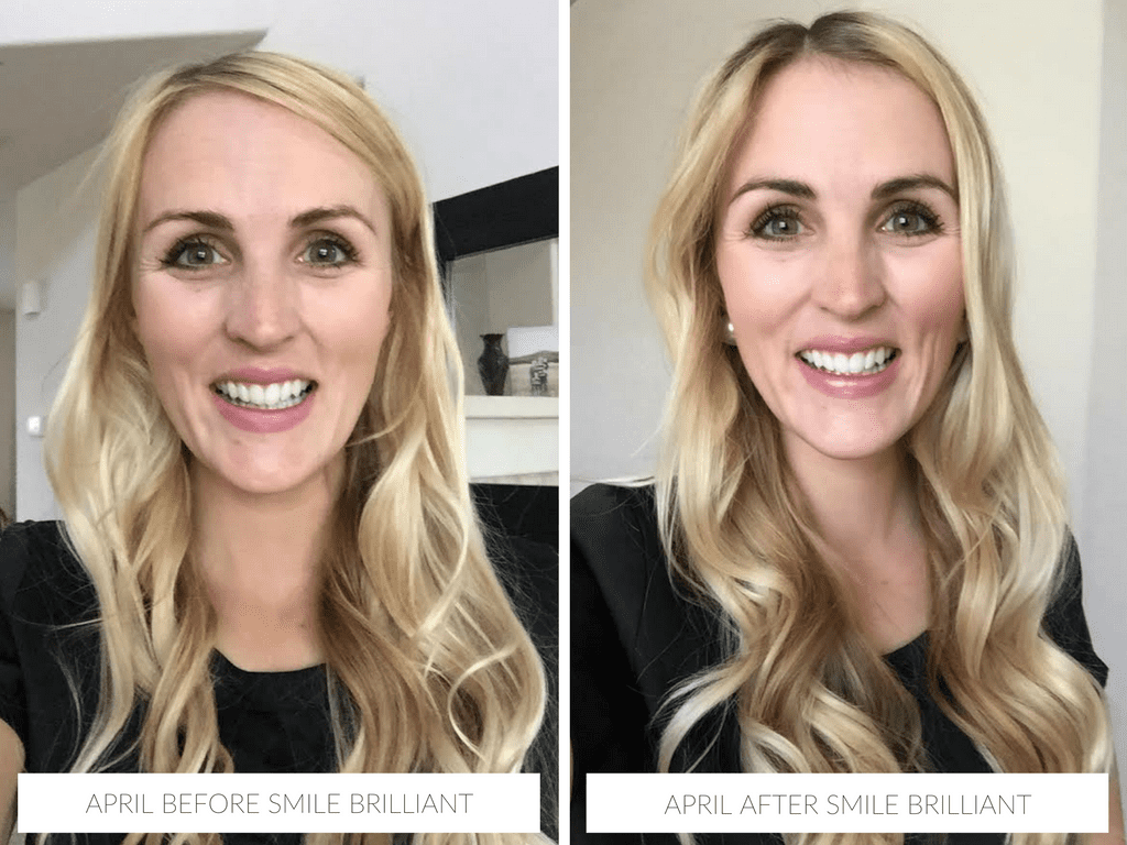 April before & after with Smile Brilliant teeth whitening @smilebrilliant #smilefearlessly
